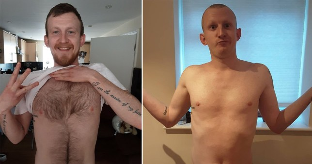 Man before and after hair removal