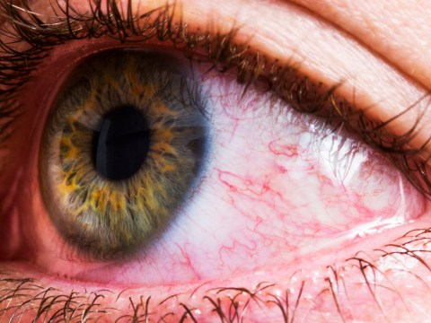 Coronavirus 'can linger in the eyes for weeks' scientists warn