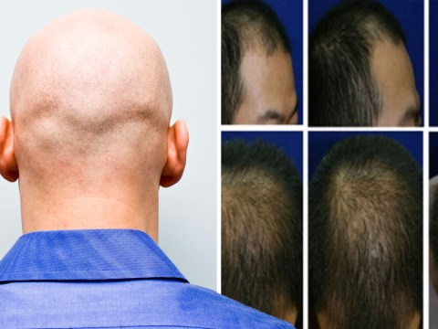 Potential cure for baldness as study finds stem cells triggering hair growth