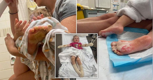 Dad's campfire warning after toddler suffers horrific burns during beach outing