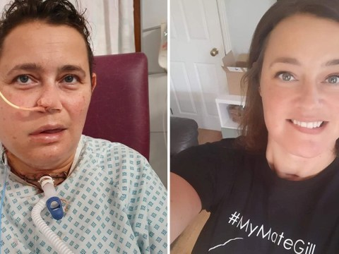 Mum's face rebuilt with part of her leg after rare tumour ate her jawbone