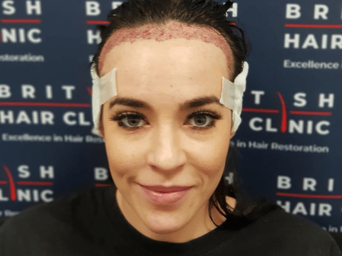 Hollyoaks star Stephanie Davis shows off results of hair transplant