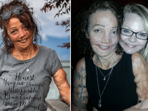 Grandma builds amazing life for herself after being 'burned alive' aged five and enduring 200 painful operations