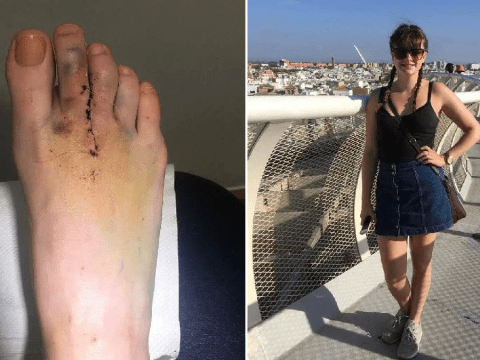 Feet week: Rare foot condition left woman barely able to walk and wrecked her mental health