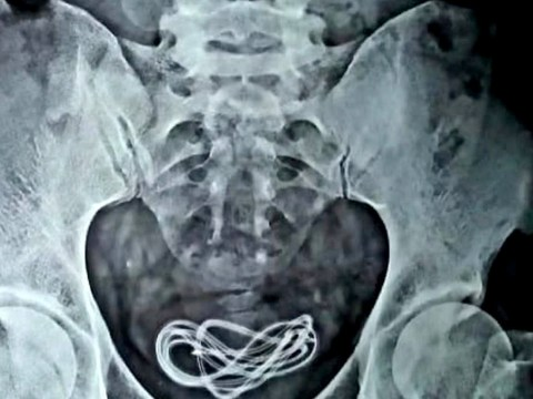 Doctors remove mobile phone charger from man's bladder