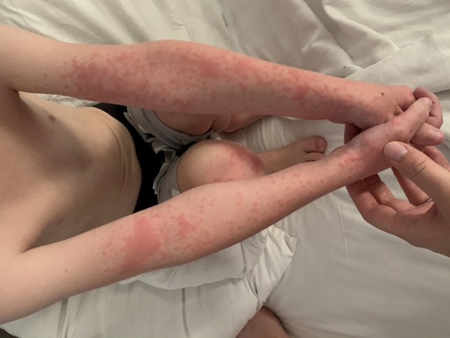 Pictures of the rash from the caterpillars