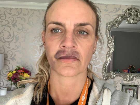 A woman who had lip fillers done in her home during lockdown has been left with a horribly bruised face. Kelly Rogers, 40, from Cardiff, Wales, l