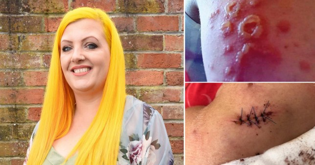 Pictures of Gemma Wright's skin