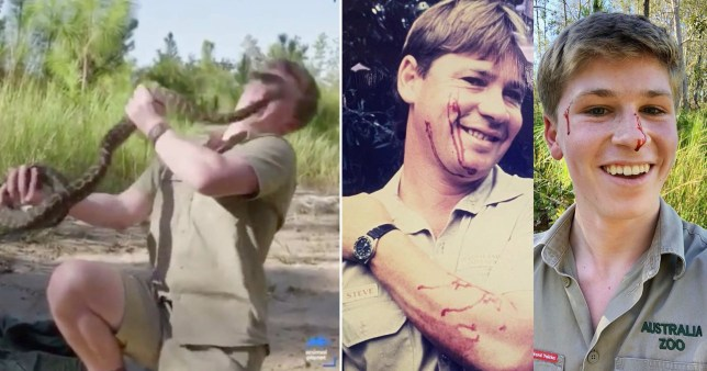 Robert Irwin and Steve Irwin showing off injuries after being bitten by snake