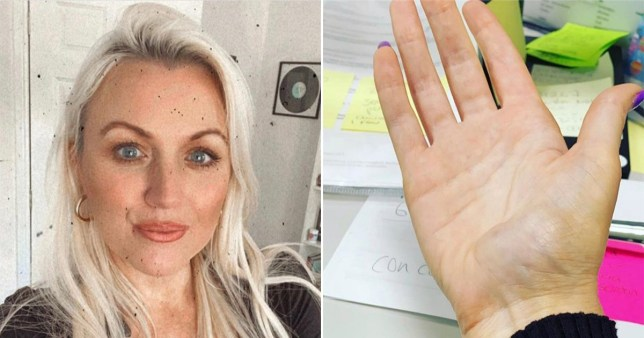 Woman thought lumps on hand were from texting too much - but she had cancer and had to have her hand removed