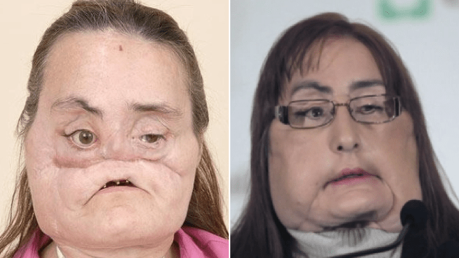 Connie Culp before and after face transplant
