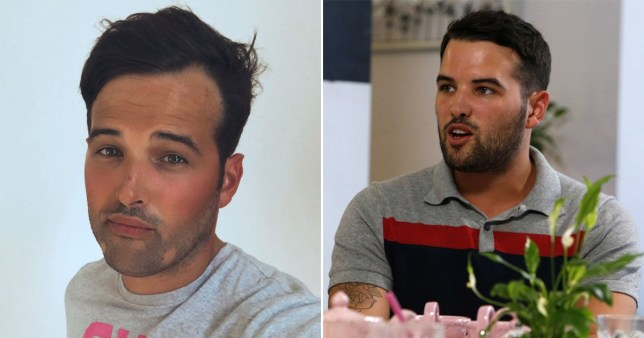 Towie\'s Ricky Rayment embraces alopecia