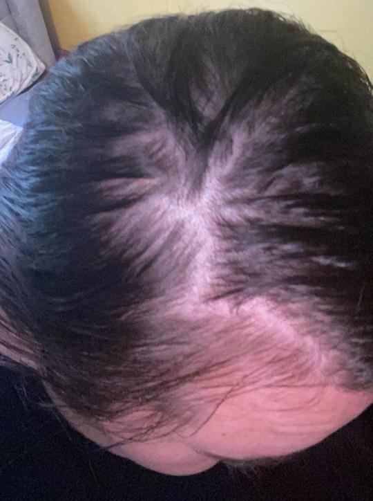 Mais de um mês depois de receber alta, Grace, uma maquiadora, começou a notar seus cabelos caindo em grandes aglomerados, aparentemente sem razão.  Foto: manchas carecas na cabeça de Grace / ESTUDO DE CASO: Grace Dudley, 30 anos, revelou como agora está usando uma peruca depois de sofrer uma extensa queda de cabelo provocada por coronavírus