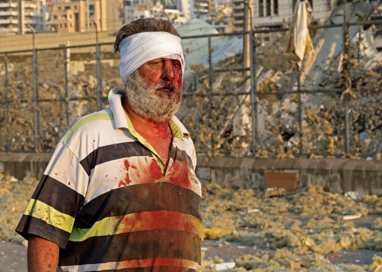 A wounded man walks near the scene of an explosion in Beirut on August 4, 2020. - A large explosion rocked the Lebanese capital Beirut on August 4, an AFP correspondent said. The blast, which rattled entire buildings and broke glass, was felt in several parts of the city. (Photo by Anwar AMRO / AFP) (Photo by ANWAR AMRO/AFP via Getty Images)
