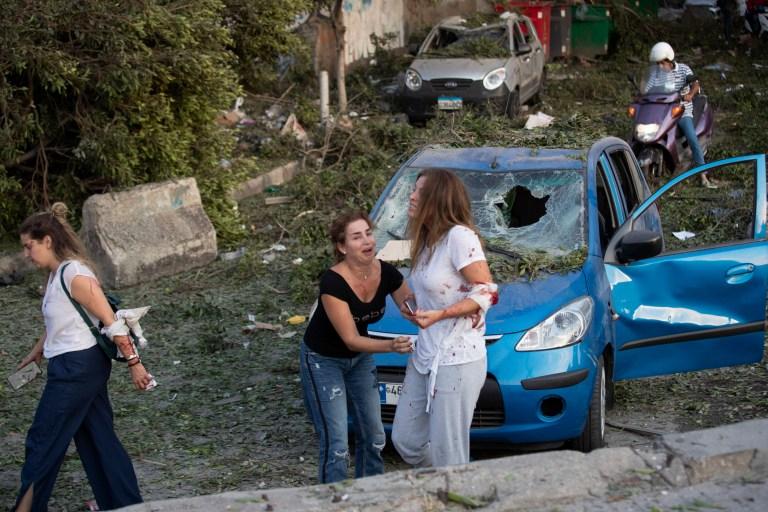 Blessé après une explosion massive à Beyrouth, au Liban, mardi 4 août 2020. Des explosions massives ont secoué le centre-ville de Beyrouth mardi, aplatissant une grande partie du port, endommageant les bâtiments et soufflant les fenêtres et les portes alors qu'un champignon géant s'élevait au-dessus du Capitale.  Des témoins ont vu de nombreuses personnes blessées par des éclats de verre et des débris.  (Photo AP / Hassan Ammar)