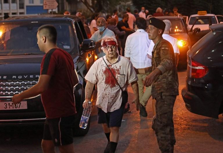 NOTE DE LA RÉDACTION: Contenu graphique / Un homme blessé sort d'un hôpital à la suite d'une explosion près du port de la capitale libanaise Beyrouth le 4 août 2020. - Deux énormes explosions ont secoué la capitale libanaise Beyrouth, blessant des dizaines de personnes, secouant des bâtiments et envoyant d'énormes des panaches de fumée s'envolant dans le ciel.  Les médias libanais ont diffusé des images de personnes piégées sous les décombres, certaines ensanglantées, après les explosions massives, dont la cause n'était pas immédiatement connue.  (Photo IBRAHIM AMRO / AFP) (Photo IBRAHIM AMRO / AFP via Getty Images)