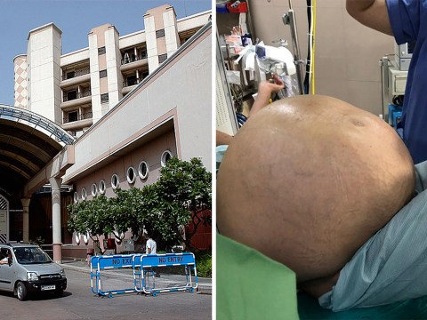 Doctors remove 'world's largest ovarian tumour' weighing 50kg from woman