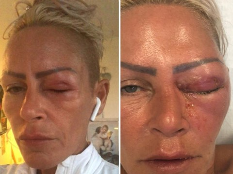Mum nearly loses eye after tiny cut turns into dangerous infection