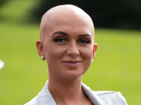 Alopecia sufferer sick of hiding bald patches finds freedom by shaving her head