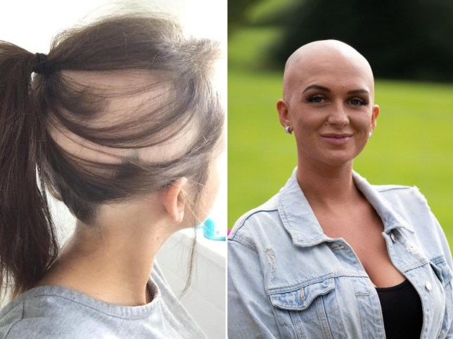 a woman with alopecia before and after she shaved her head