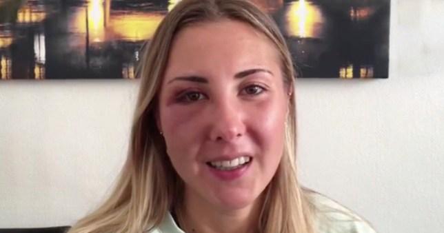 Femme frappée au visage pour avoir porté une jupe METRO GRAB - tirée du Twitter de France Bleu Alsace pas d'autorisation - appel éditorial à courir Photo: France Bleu Alsace