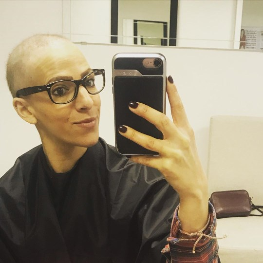 She lost her hair during treatment