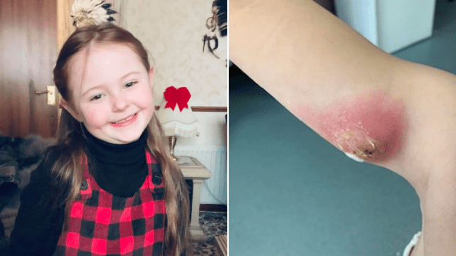 emily-jane stuart's suspected spider bite needed emergency surgery