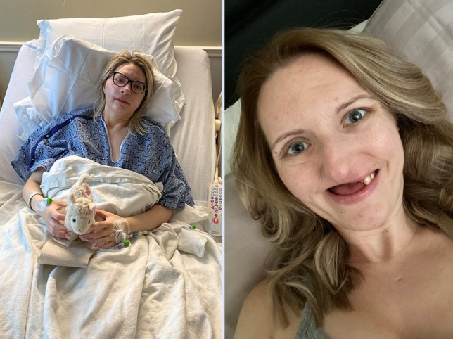 Split image showing Nicole in hospital and Nicole with her teeth missing