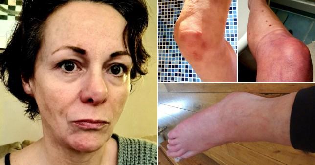 Nicola Kimberley, who believes she has had coronavirus since December, tells of her horrific symptoms ten months later
