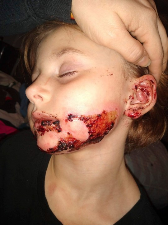CATERS NEWS - (PICTURED the burns to Izabellas face during the healing process) - A six-year-old has been left with horrendous facial burns - after hand sanitiser she was playing with caught fire. Izabella Reaume has been left with severe scars across her face, from ear to ear, as a result of playing around with hand sanitiser which accidentally caught fire. The youngster was rushed to hospital where medics battled to save her - but she has been left having to wear a pressure garment across her face for 23 hours a day. Her mother Larrissa Schaffenberg, 29, is now speaking out to warn other parents about the dangers of leaving hand sanitiser lying around. SEE CATERS COPY .