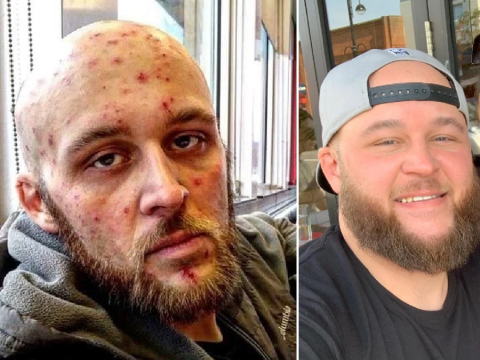 Heroin addict shares incredible before and after pictures as he recovers from addiction