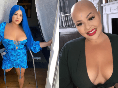 Student who lost her leg to cancer stops hiding her disability online to inspire people to love their bodies