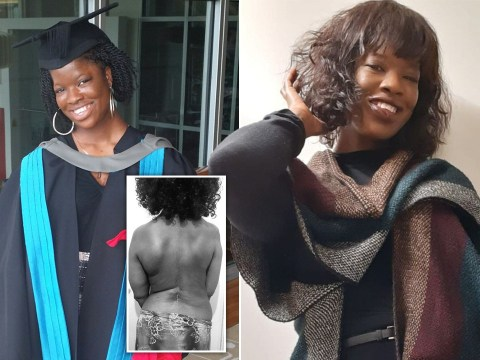 Disabled Black woman faces discrimination every day thanks to 'double prejudice'