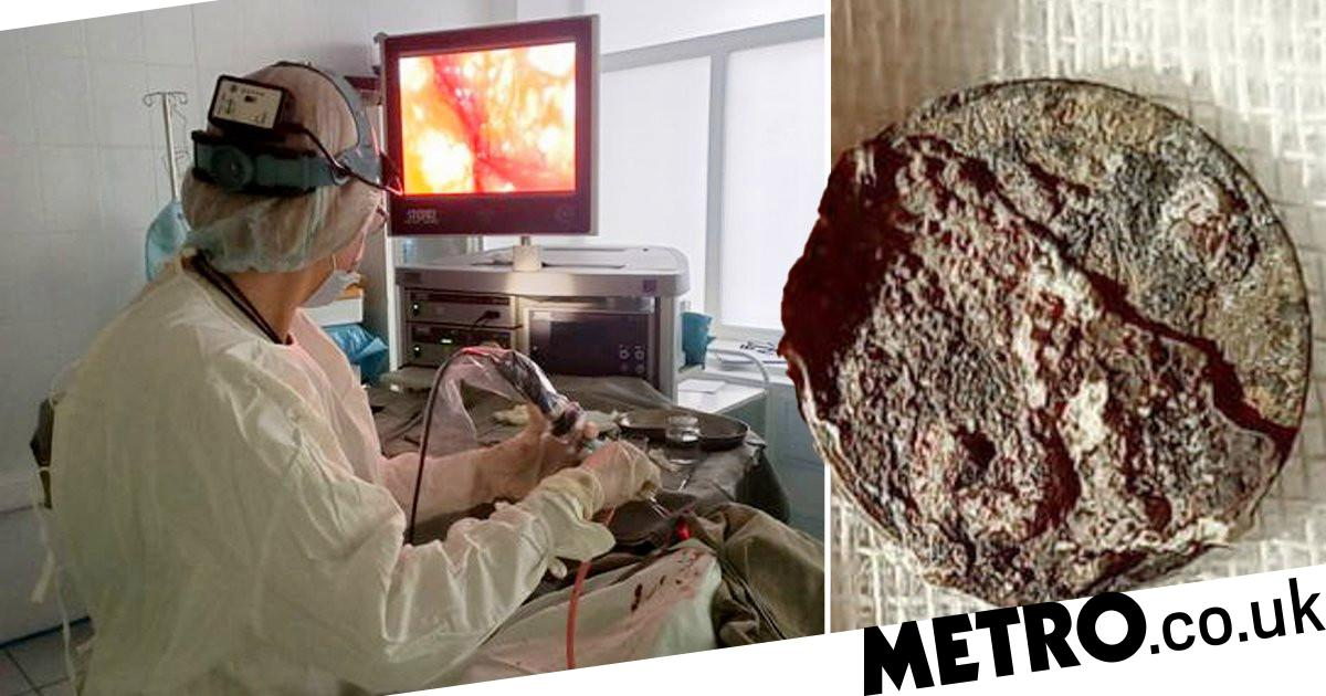 Coin removed from man's nose after being stuck for more than 50 years - metro