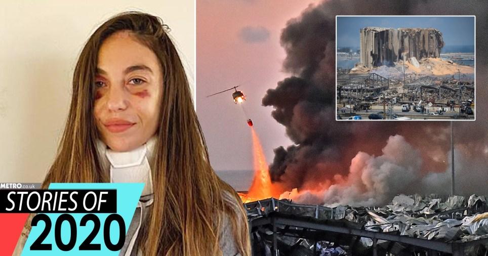 Clara, qui a été blessée dans l'explosion de Beyrouth