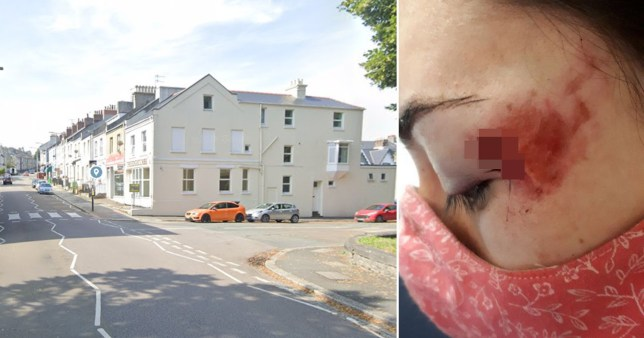 A road rage driver bit a woman's face and scarred her for life in Stoke, Plymouth.