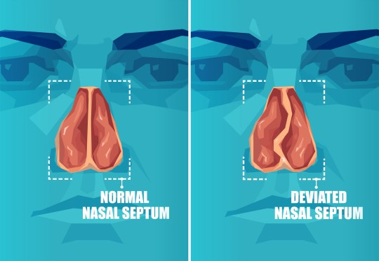 Vector cross section of human face with deviated and normal nasal septum