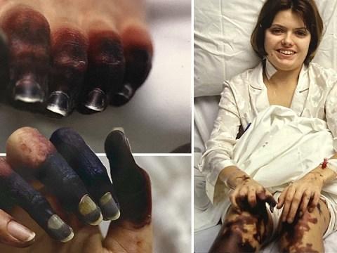 Mum shares pictures of her limbs turning black from meningitis