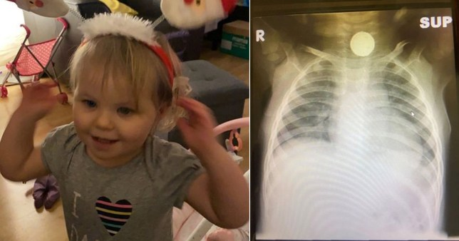 Sophia Grace, 2, and an x-ray showing a small watch-battery. Bristol Royal Children's Hospital has issued a warning after the girl swallowed a battery and had to have surgery to remove it.