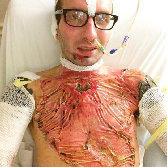 Matt lost all of the skin on his chest, laving his ribs exposed. FLORIDA,USA: THIS MAN was electrocuted at a voltage equivalent to SIX ELECTRIC CHAIRS during a tree trimming accident - leaving him with melted skin over twenty-five percent of his body and his ribs completely exposed. Former professional wakeskater turned motivational speaker Matt Manzari (31) from Florida, USA, found success at an early age. At just 15 years old, Matt became the first wakeskating athlete to be endorsed by Nike and travelled the world competing in the extreme water sport for eight years. Matt?s Christian faith has played a big part in his life and after completing his studies in theology at the University of Tennessee in June 2014, Matt began working with a church group - offering to trim the trees surrounding the church building. Matt began his ascent to the top canopy level in a remote controlled bucket truck whilst his newly pregnant wife Bobbye Jean (30) was working inside the church. Unfortunately, Matt had made the catastrophic error of using a steel bucket as opposed to a fiberglass one. As he got towards the canopy level, electricity from a nearby powerline was attracted to the steel bucket he was standing in, conducting across and sending 14,000 volts tearing through Matt's body. Members of the church group, including Bobbye Jean, rushed to Matt?s aid but found him in a terrible condition. The electricity had melted Matt?s skin - leaving his ribs and collar bone completely exposed. He has suffered twenty-five percent fourth and fifth degree burns meaning that the electricity had caused charring to his flesh and had even burnt through ligaments and muscles. Bobbye Jean and Matt?s parents were told that Matt was very unlikely to live to see the next day, but miraculously Matt managed to survive the night. Furthermore, doctors told Matt?s parents that the amputation of his arms was very likely due to how severe the burns were. Matt spent the next week in a coma but even after wa