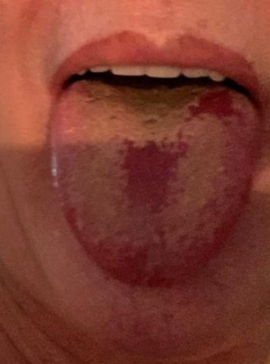 Tim Spector Covid tongue is new symptom
