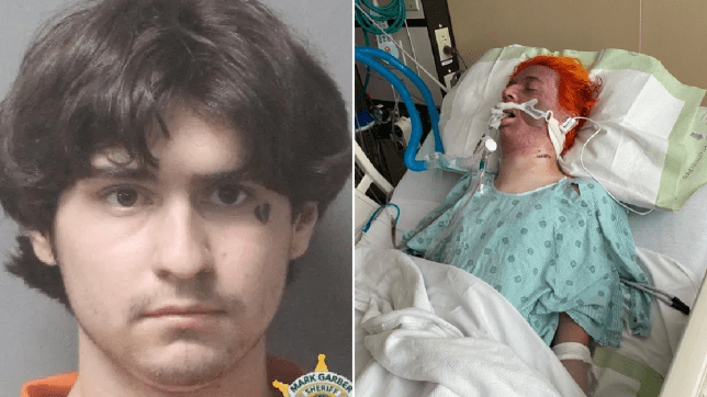 Mugshot of scowling man and injured hate crime victim in hospital