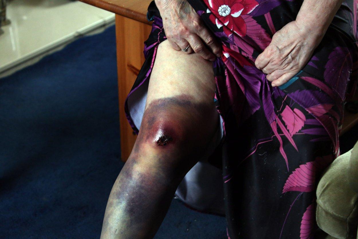 Ida Brown di Dunston che è stata gettata a terra quando i ladri hanno cercato di rubare il suo scooter elettrico dal suo giardino