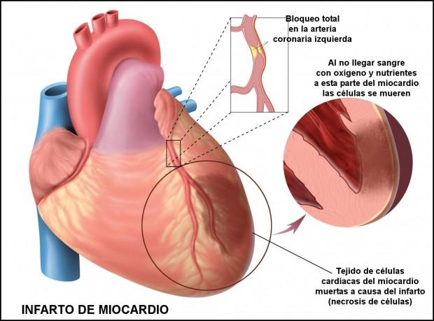 Infarto Miocardio