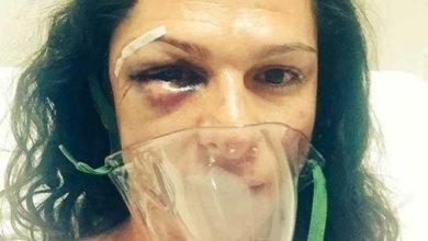 Photo of Ana Gabriela Guevara: Cuatro hombres me golpearon de la manera más cobarde
