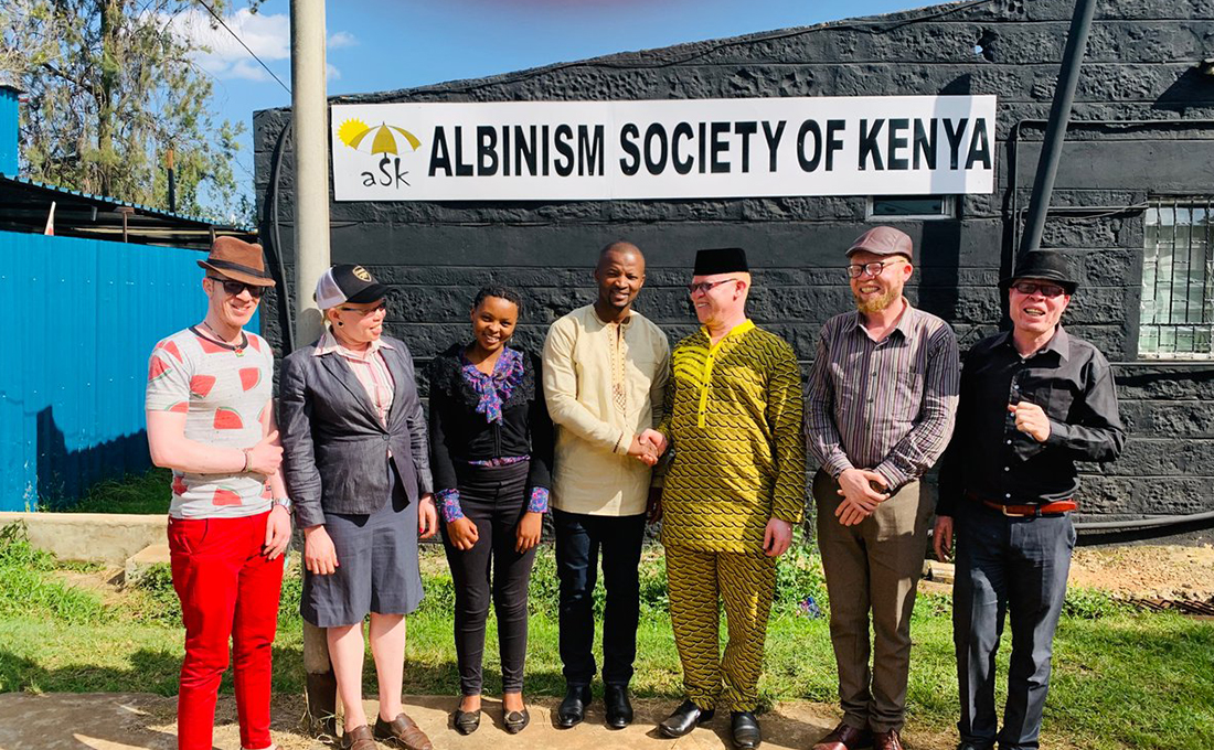 Kenya marks International Albinism Day amid calls for equality