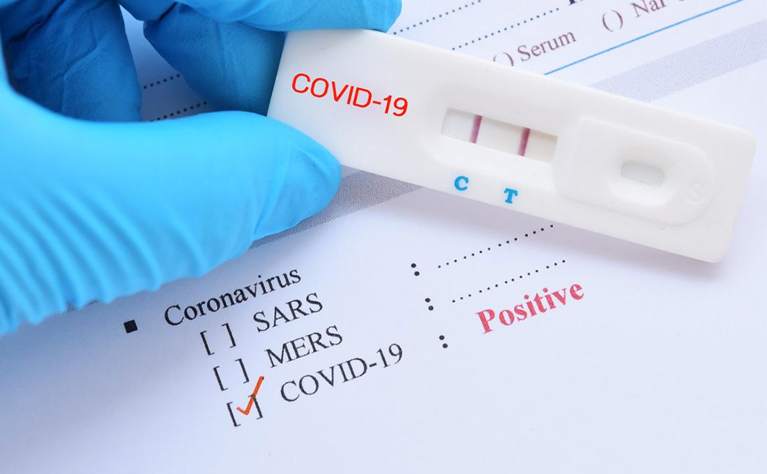 Kenya records 431 new COVID-19 cases