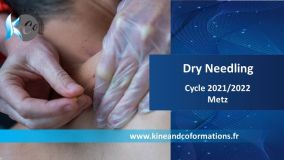 dry needling, cycle 2021/2022, christophe broy, metz