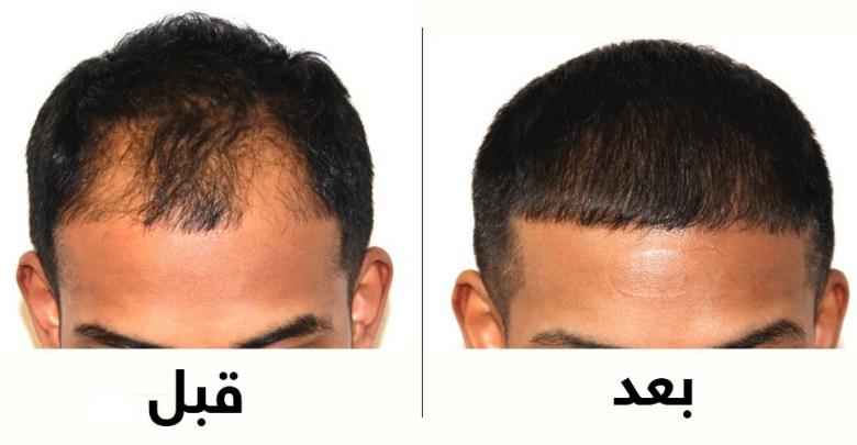 هل ينصح بزراعة الشعر؟ الفعالية والآثار الجانبية مع الصور
