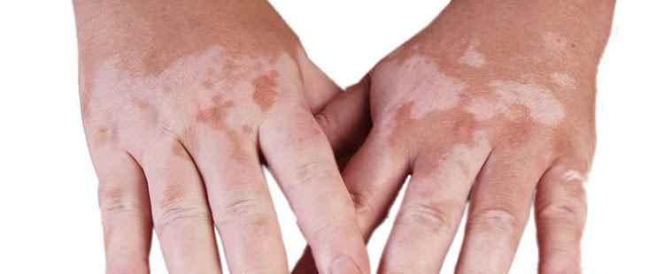 عشبة اصابع زينب لعلاج البهاق